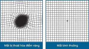 Lưới amsler dùng để chẩn đoán bệnh thoái hóa điểm vàng